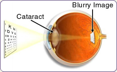 img-cataract.jpg