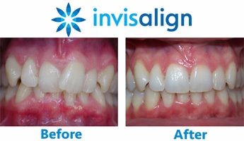 invisalign-straight-teeth-before-after-NY.jpg