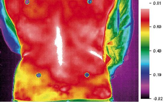 INVEL termografia schiena con maglia MIG3