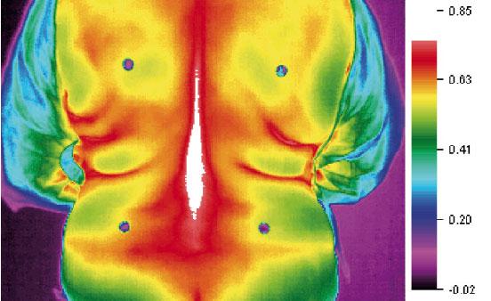Termografia schiena di controllo con maglia normale