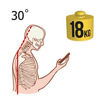 noacademy-neck-weight-18kg.jpg