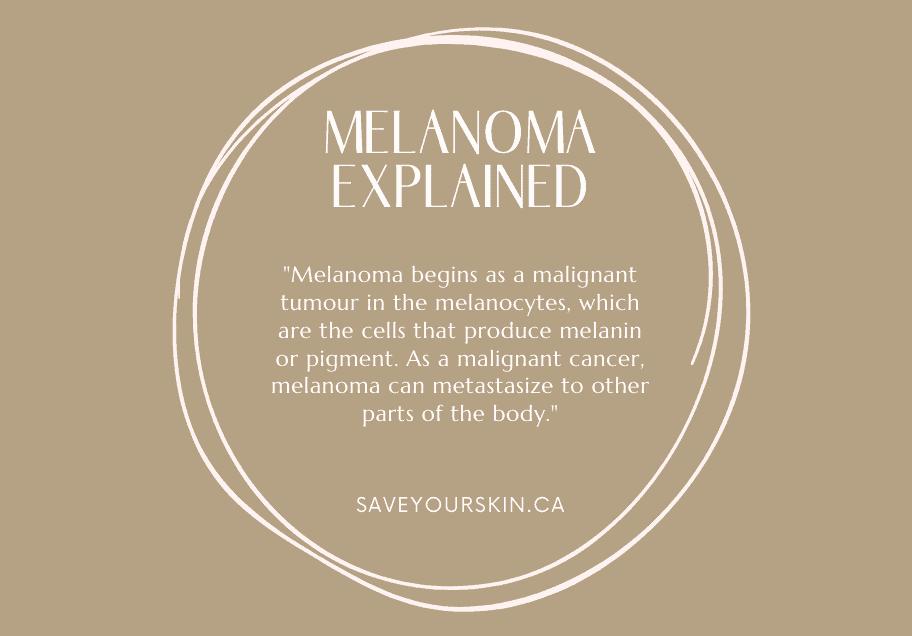 Melanoma explained.png