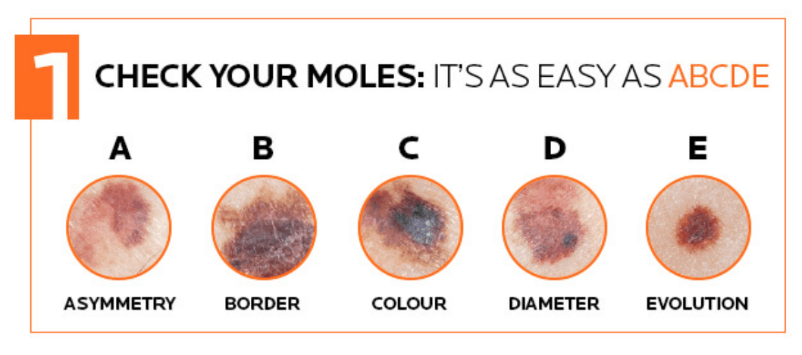 Image credit to La Roche Posay on the awareness of melanoma