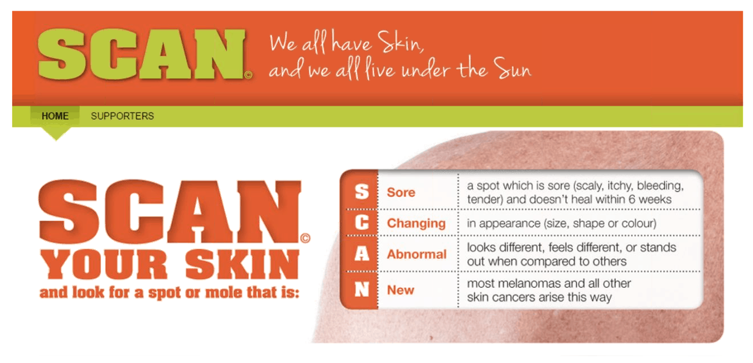 SCAN your skin and look for a spot or mole