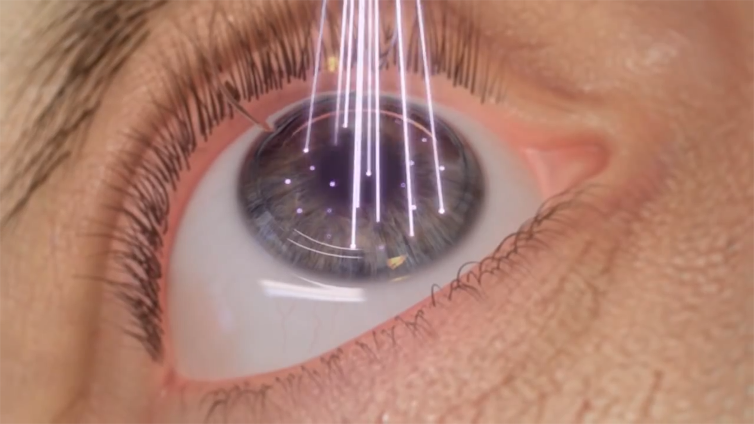 220 Lasik Myth Or Reality Strong Vision Care Connect