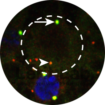 Neural stem cells (dashed circle) show marked asymmetries in centrosome activity control. Active daughter centrosome (arrow) and inactive mother centrosome (arrowhead) are highlighted. Pericentriolar material is labeled in green; centrioles are red.