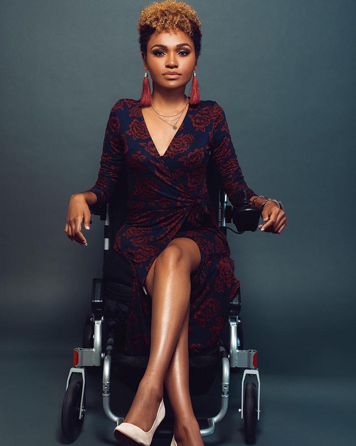 Photography & Makeup: @LoreneJanae  Styling: @disabilityfashionstylist