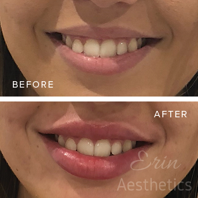 Lip Filler Perth — Erin Aesthetics
