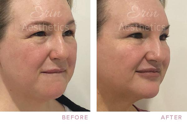 Fat Dissolving Treatment Perth — Erin Aesthetics