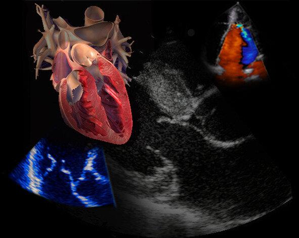 echocardiography course.jpeg