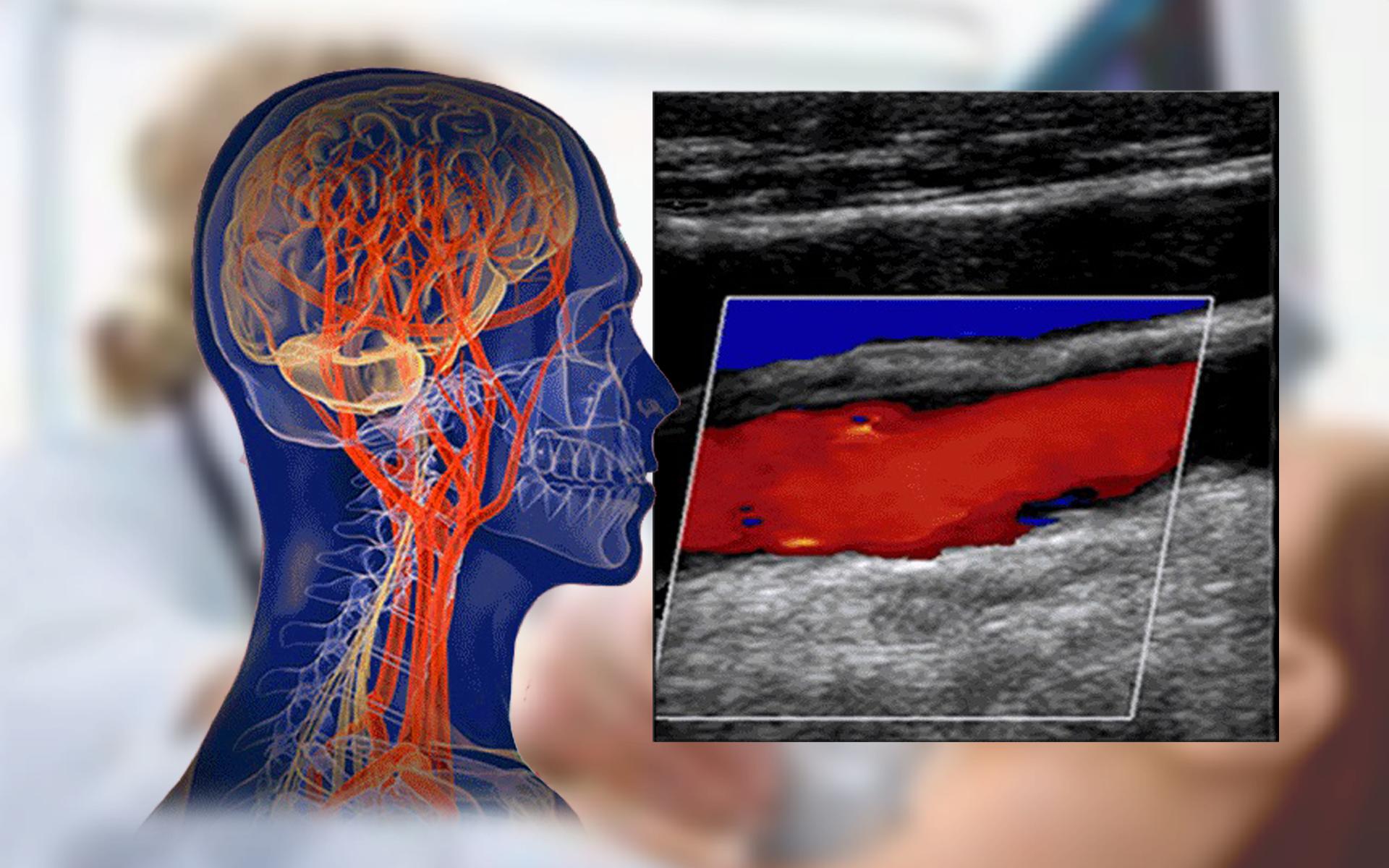Vascular Ultrasound Training