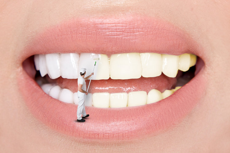 MouthCleaning- Hygienist Services.jpg