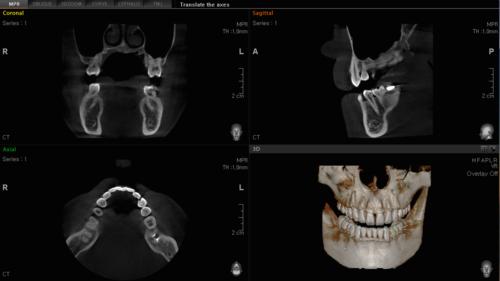 CT-Scanning 01.png