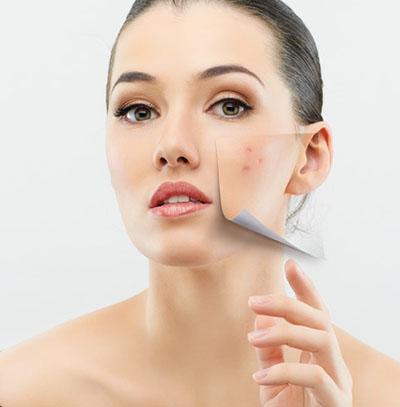 acne-acne-scarring.jpg