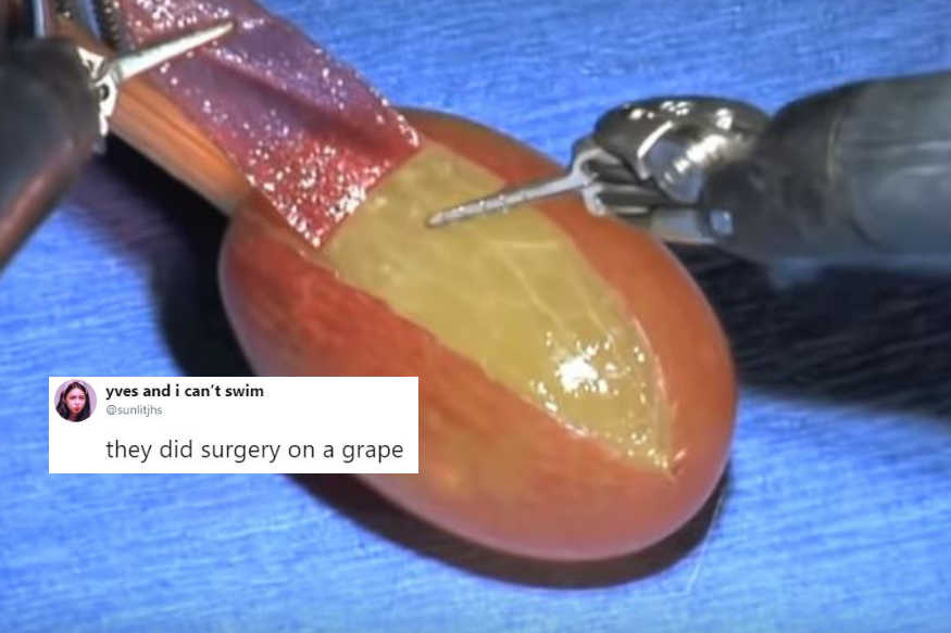 they-did-surgery-on-a-grape.png