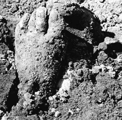 Un pie mal enterrado