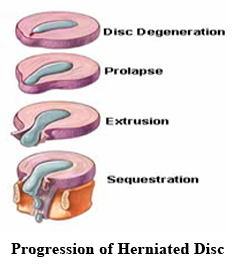 Disc Herniations - A Common Cause of Low Back Pain