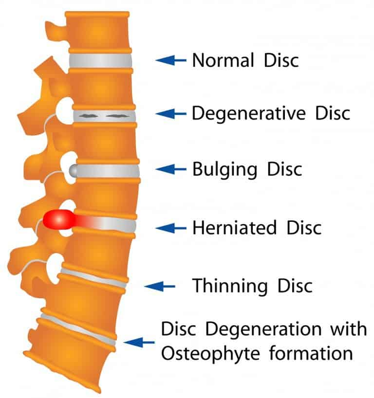 Disc herniations are a normal part of ageing and chiropractors can helping with the pain from herniated or bulging discs