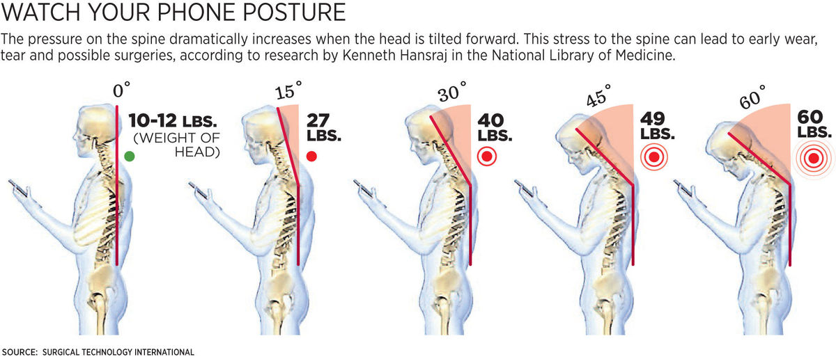 Correct posture can help relieve neck pain from computers and mobile phones