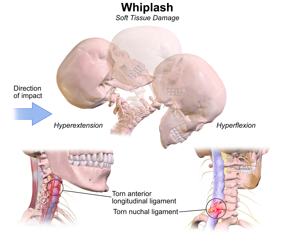 Chiropractors can help neck pain and stiffness from whiplash and car accidents