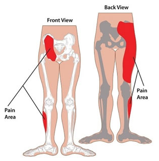 How does sacroiliac (SI) joint dysfunction and sprains can cause knee pain