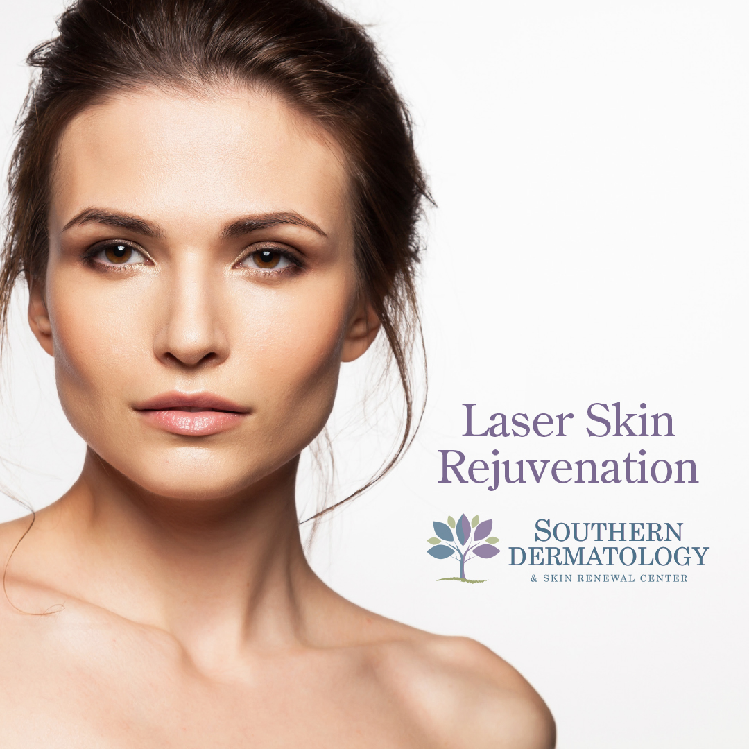 Raleigh, NC's best laser treatments at Southern Dermatology