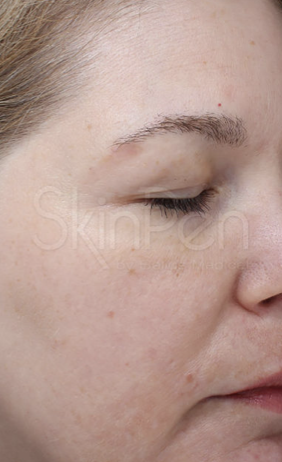 Southern Dermatology micro needling after