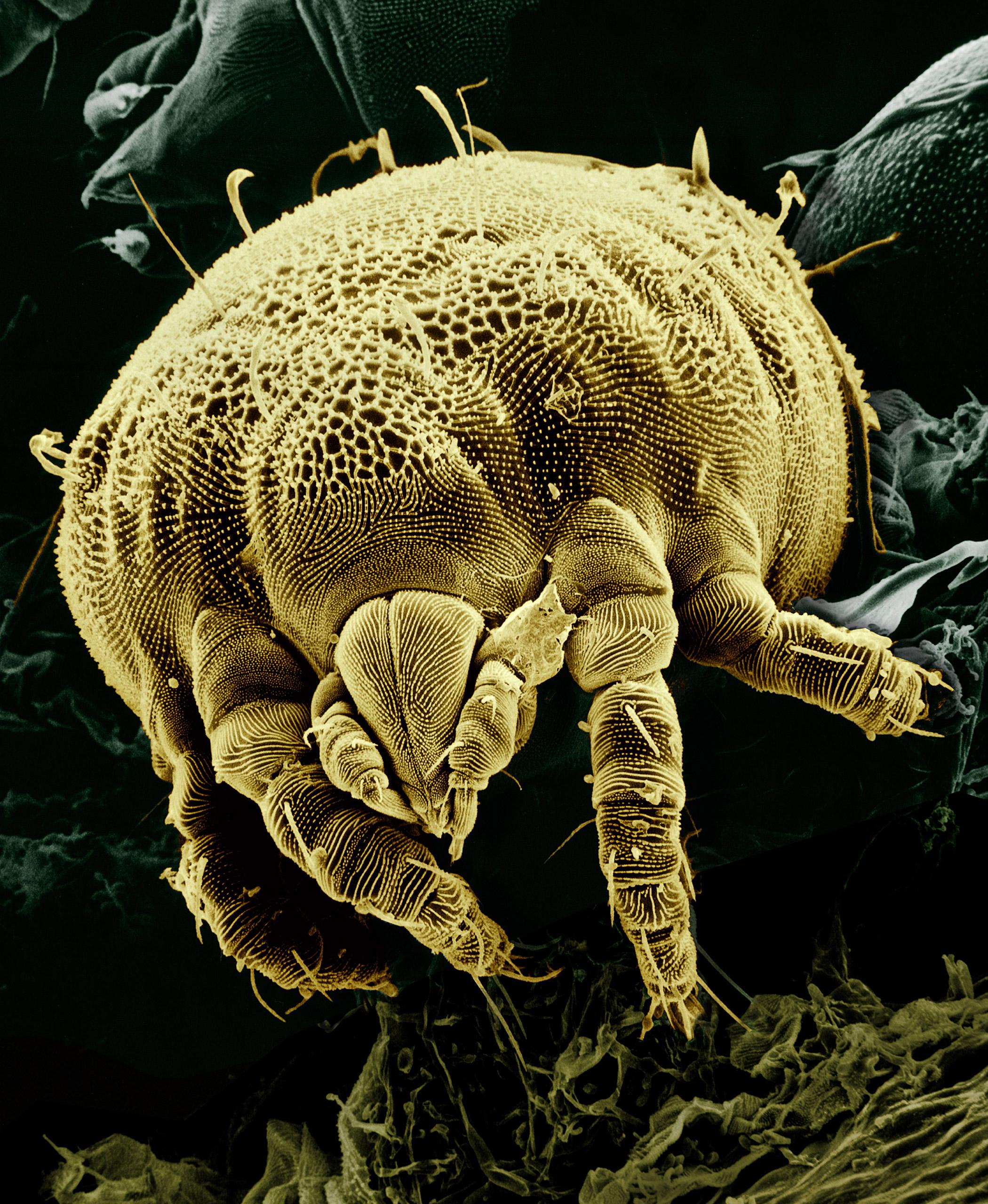 Yellow_mite_(Tydeidae)_Lorryia_formosa_2_edit.jpg
