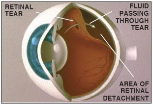retinal-detachment-1.jpg