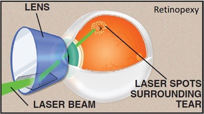 retinopexy2.jpg