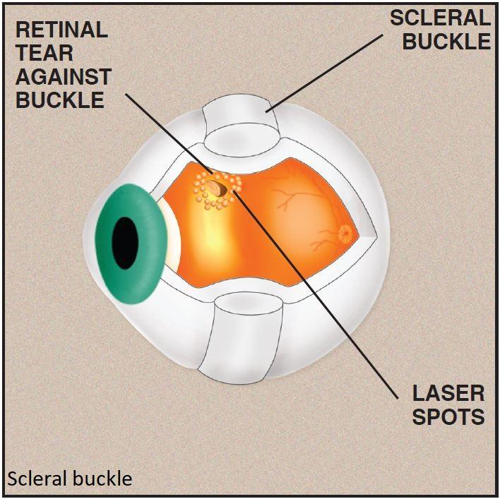 scleral buckle1.jpg