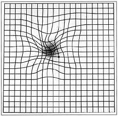 Amsler grid showing a simulation of distorted vision caused by AMD