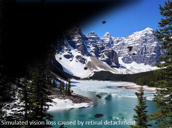 overlay-retinal-detachment banff.jpg