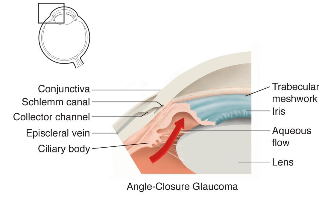 angle closure.jpg