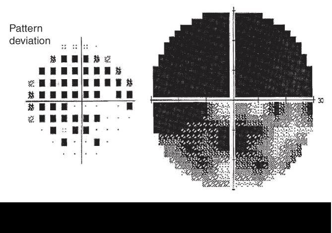 Visual field testing in advanced glaucoma