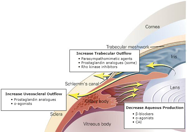 Medical therapies for open-angle glaucoma