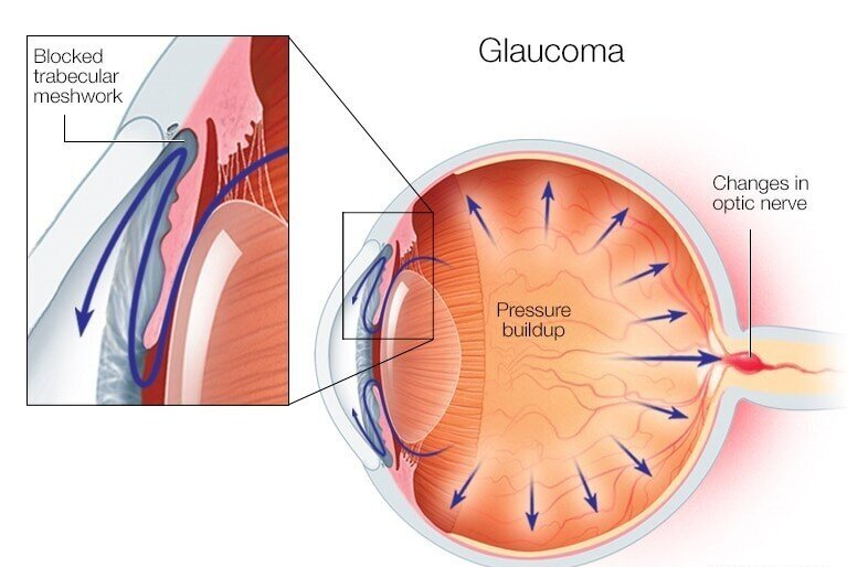 In glaucoma, the flow of aqueous fluid becomes impaired, much like a sink that cannot drain, leading to increased pressure in the eye.