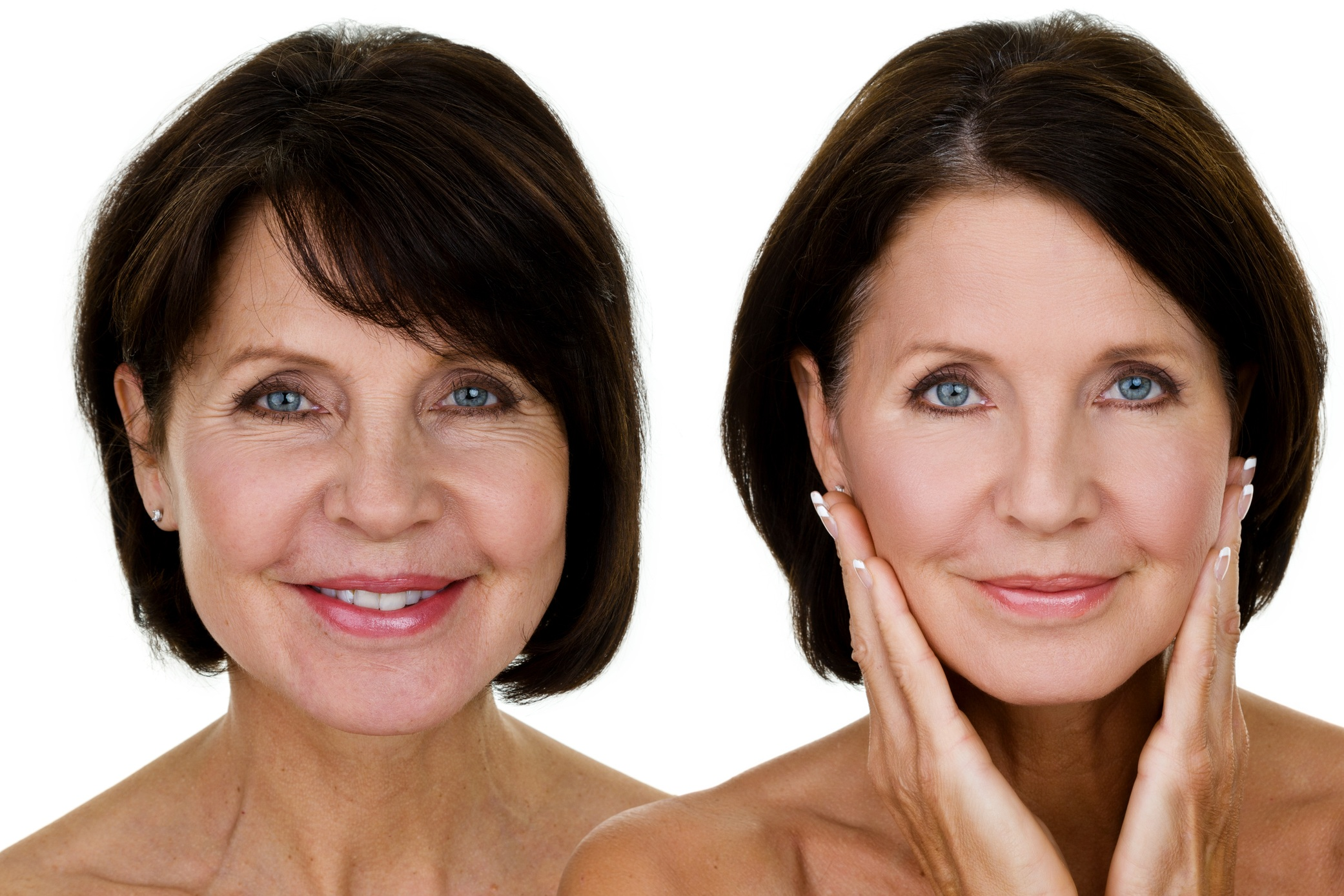 The Liquid Lift - Hyaluronic acid fillers - • Lift and combat the volume loss associated with aging• Volume enhancement for Lips, cheeks