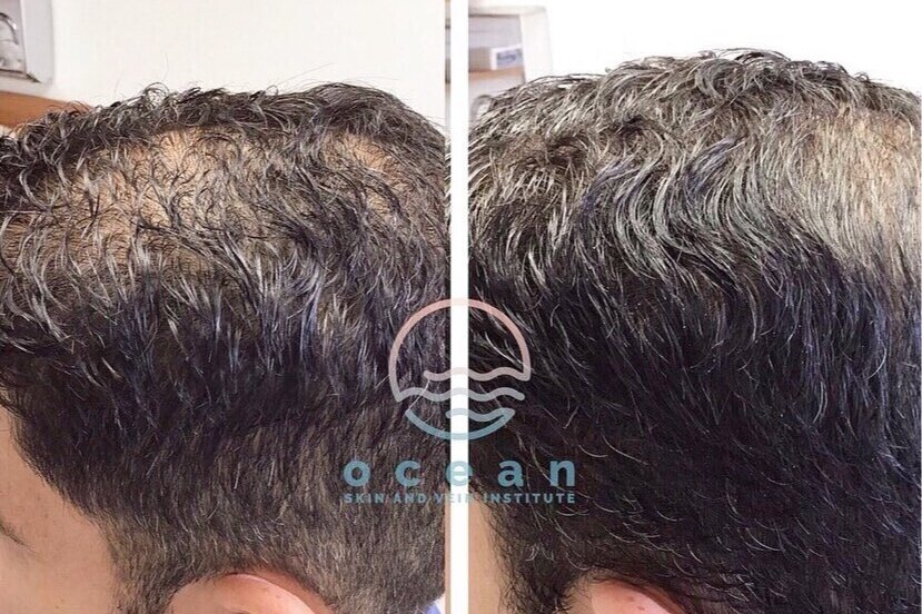 Hair Restoration with PRP