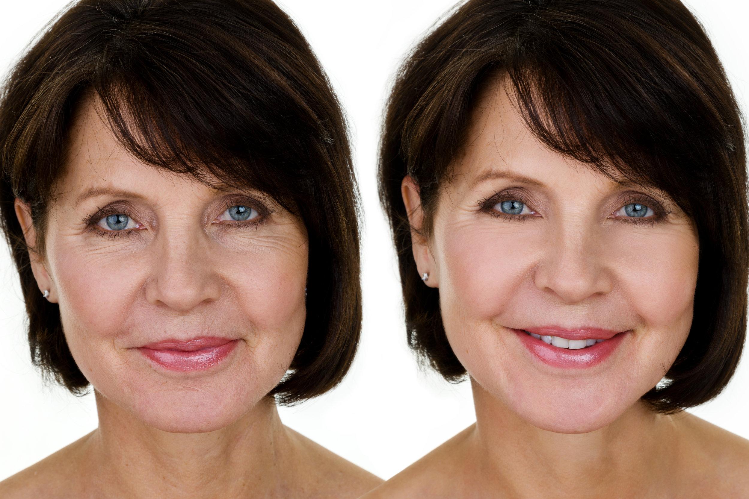 botox older woman.jpg