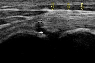 "This is an ultrasound image of Shelby's tear. The yellow arrows show healthy biceps tendon, and the tear can be seen as the black line between the two ""+"" symbols."