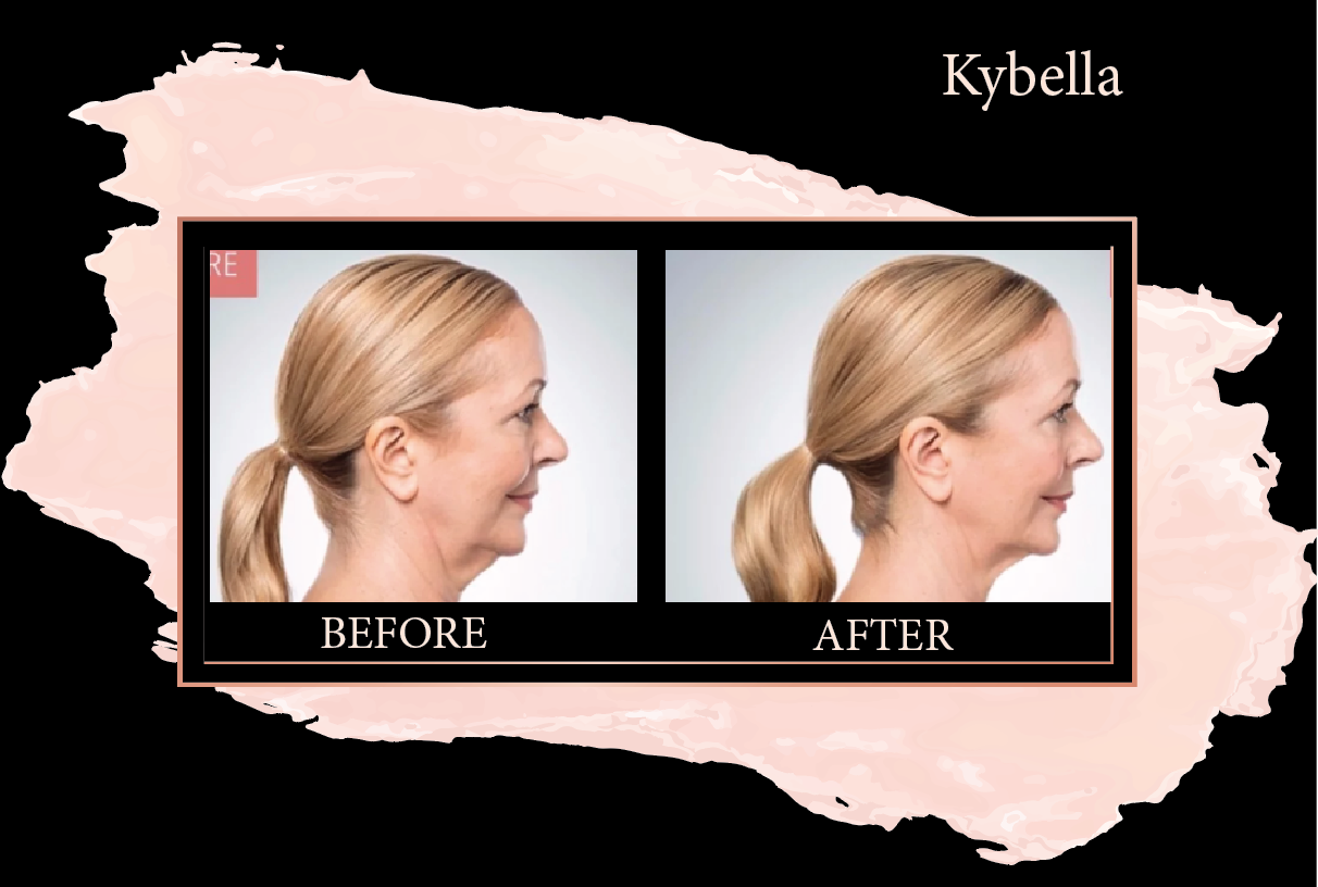 Kybella - Kybella is deoxycholic acid. It is injected into submental (under chin) area to destroy fat cells and lessen the appearance of a double or full chin allowing for a more defined jaw line and youthful appearance. Kybella treatment package includes 2 sessions, 2 months apart with utilizing a 2 vial dose per session. Dosing and session number is individualized and additional dosing/sessions may be required at an additional cost.