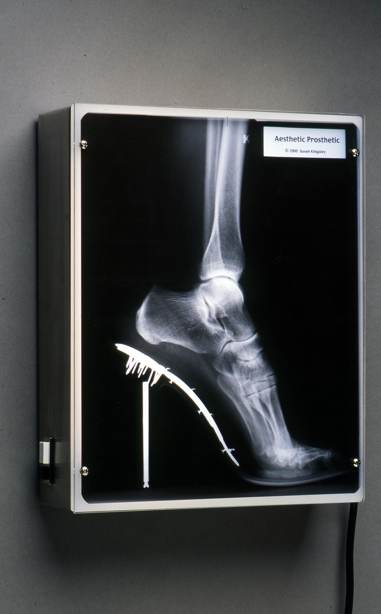 Aesthetic Prosthetic