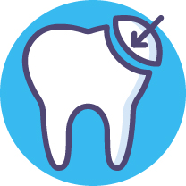 Tooth Bonding [Converted].jpg