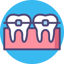 Dental Braces [Converted]-01.jpg