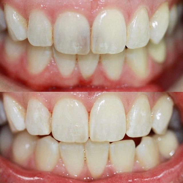 Ain't nothin a little composite bonding can't fix 🦷 . . . .  #compositebonding #dental #dentist #dentistry #torontodentist #torontodentistry #tooth #teeth #thesix #queenstreet #queenstreeteast #queenstreetwest #health #hygiene