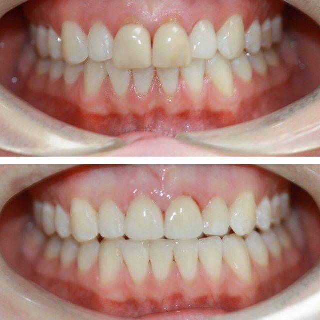 Replacement of two veneers #veneers #torontodentist #cosmeticdentisttoronto
