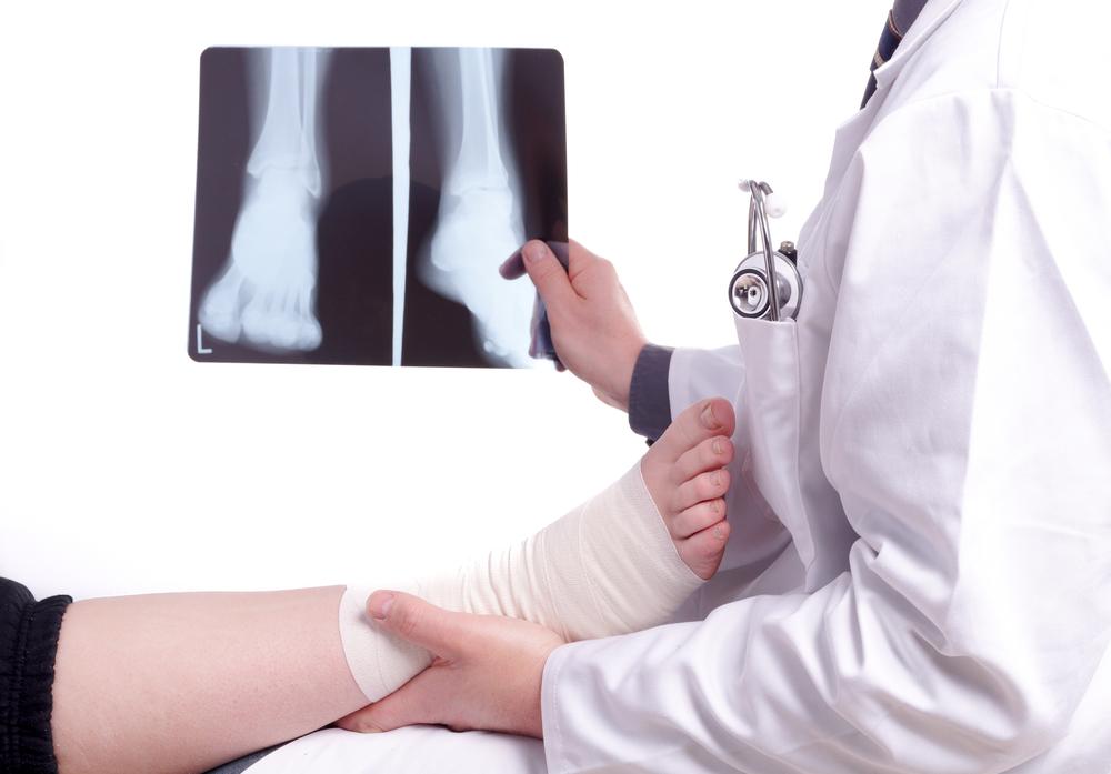 manhattan podiatrist treats foot stress fracture