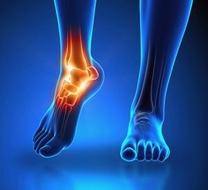 ankle specialist in manhattan for chronic sprain ankle pain