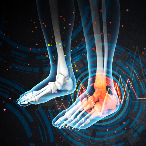 ultrasound used for diagnosis of foot and ankle conditions by podiatrist